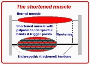 IMS muscle structure